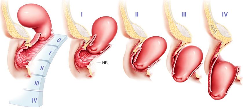 Пролапс органов малого таза