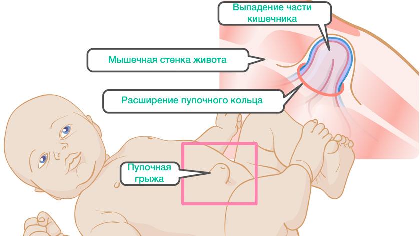 Как лечить пупочную грыжу новорожденного пластырем