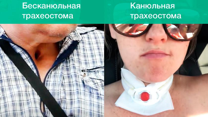 Трахеостома: постоянная или временная. Стерильно.com