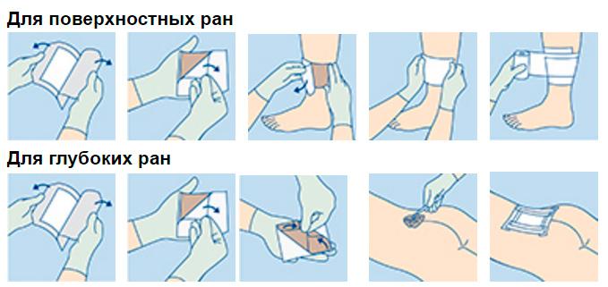 Гидротюль инструкция